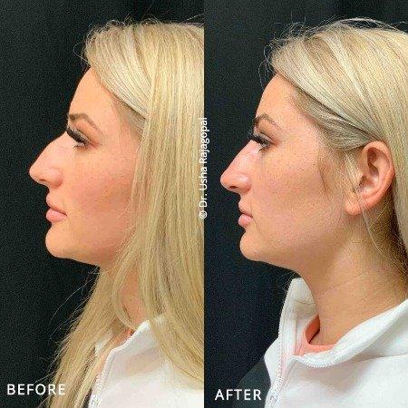 Безоперационная пластика носа: эксперты рассказывают о плюсах и минусах процедуры